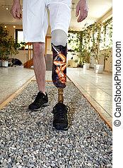 Male prosthesis wearer learning to walk