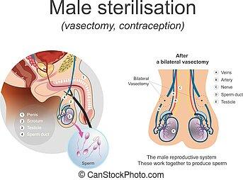 Male sterilisation vasectomy.