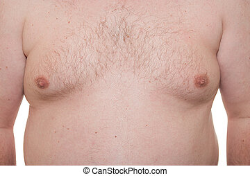 Male thorax showing early stage Gynecomastia or man boobs...