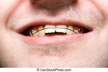 male with overbite wearing braces and smiling
