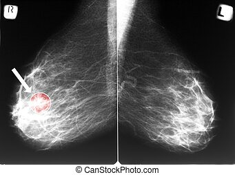 Mammogram with breast cancer - Mammogram with arrow...