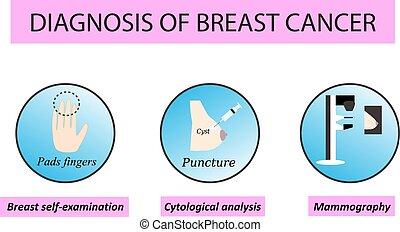 mammography., cysts., cancer., isolerat, mot, bakgrund., ...
