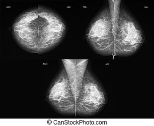 Mammography in all projections - Left-right comparison of a...