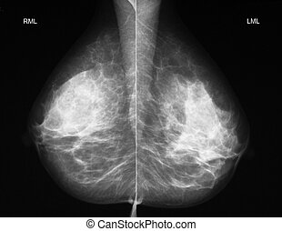 Mammography in mediolateral projection - Left-right...