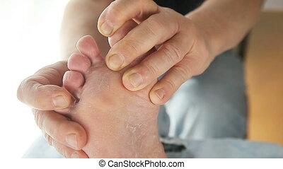 man checks athletes foot on toes - closeup of a man's toes...