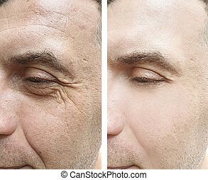 man face wrinkles before and after treatment
