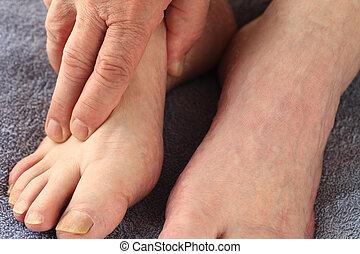 Man grasping foot