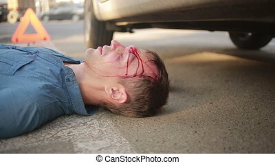 man had a car accident. head smashed. pedestrian injured in road accidents