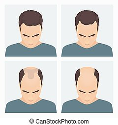 Man hair loss stages