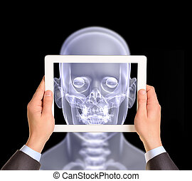 Man hands using tablet pc. Image of x-ray head on screen
