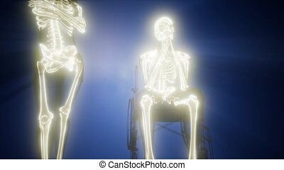 man in wheelchair with visible bones