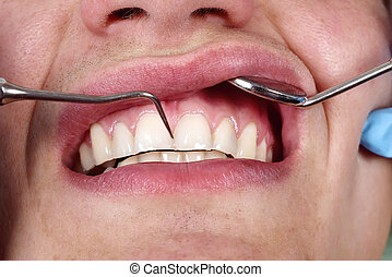 patient having her teeth examined by specialist