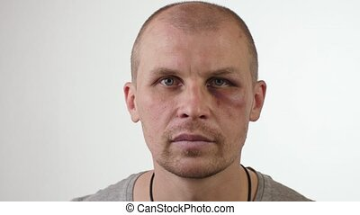Man with black eye on white background