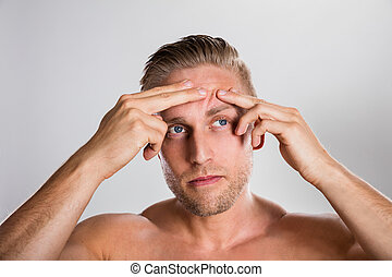 Man Squeezing Pimple On His Forehead