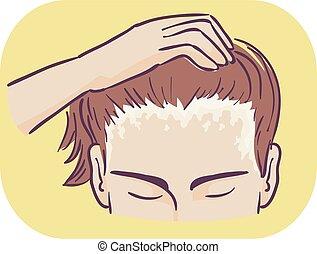 Man Symptom Scalp Scaly Patches Illustration - Illustration ...
