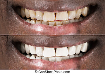 Man Teeth Before And After Whitening - Teeth Before After