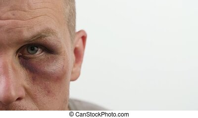 Man with black eye looks at the camera