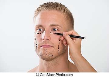 Man With Correction Mark For Plastic Surgery - Close-up Of A...