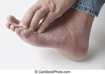 a man scratches his irritated toes