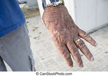 Man with only four fingers