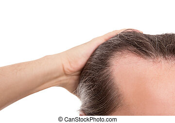 man with receding hairline, closeup isolated on white, concept alopecia