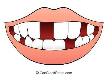 mancante, bocca, denti