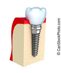 mandíbula, dental, implante, hueso