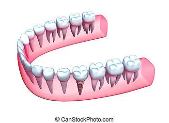 mandíbula, modelo, dientes humanos