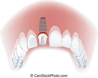 mandible with a false tooth