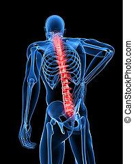 mandlig, backache