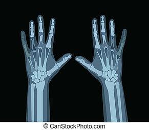 mani, raggi x