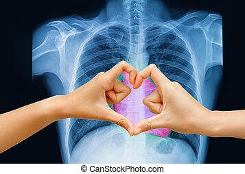 mano, fare, uno, forma cuore, su, raggio x torace, immagine