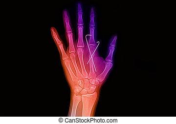 mano, imagen, dedo, fractura, muñeca, índice, insertado, k-...