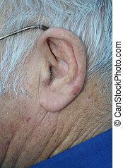 An elderly mans ear