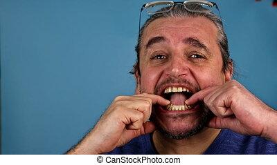 Man's hand putting temporary plastic dental crowns in teeth