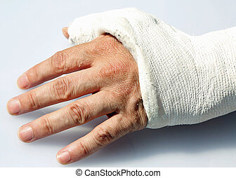 hand with fractured bones in the orthopedic hospital emergency