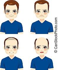 maschio, perdita capelli, palcoscenici