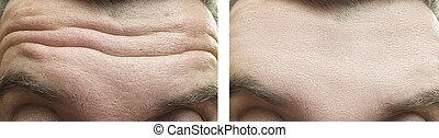 maschio, prima, secondo, rughe, trattamento, fronte