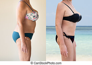 Mature Woman Before And After From Fat To Slim Concept