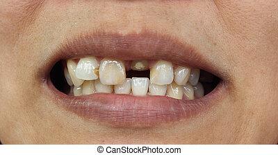mau, closeup, dentes