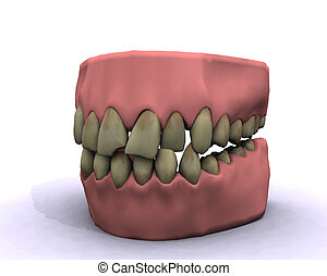 mauvais, hygiène, dents