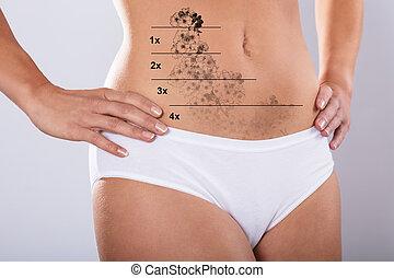 mave, tatovering, kvinde, laser, afsked