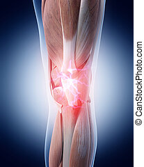 painful knee - medical 3d illustration of a painful knee