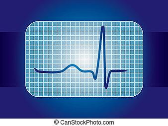 ECG curve