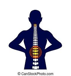 Medical Concept Illustration of Musculotendinous Strain Back...