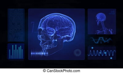 Medical display of skull and brain - Medical display - skull...