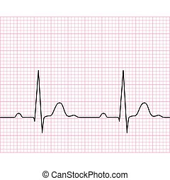 Illustration of medical electrocardiogram - ECG on chart paper, graph of heart rhythm, 2d illustration, vector, eps 8