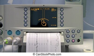 Medical Equipment ultrasound scanning. Diagnosis of...