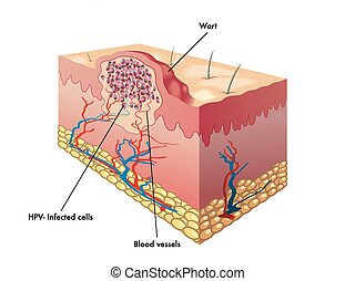 wart - medical illustration of a section of a wart