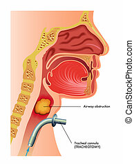 tracheotomy - medical illustration of a surgical tracheotomy